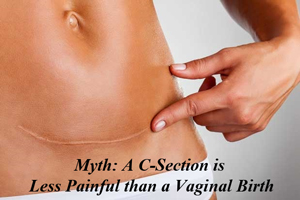 c-section-and-vaginal-birth-myths